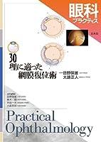 眼科プラクティス 30 理に適った網膜復位術