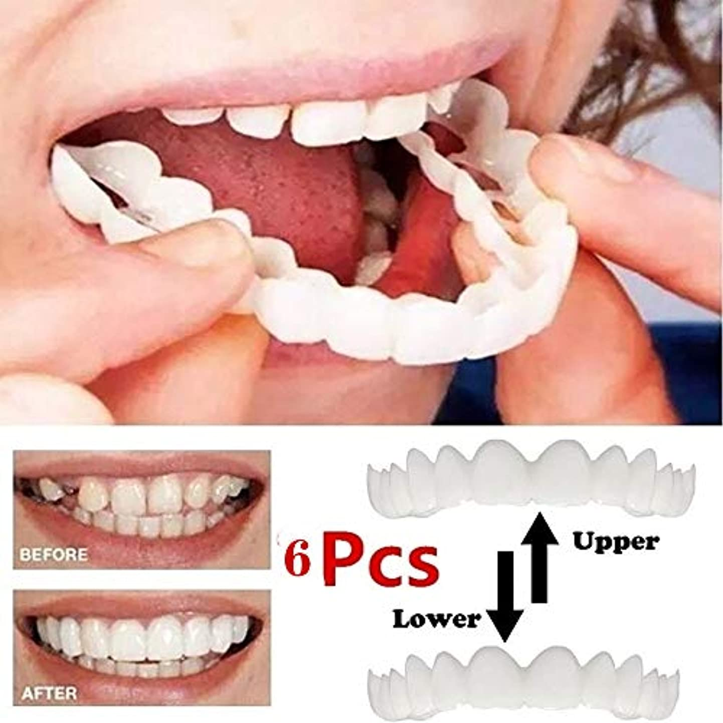 最新のベニヤの歯、化粧品の歯3ペア - 一時的な笑顔の快適さフィットフレックス化粧品の歯、ワンサイズは最もフィットし、快適なトップとボトムベニア - 歯突き板