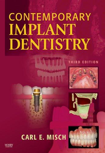 Contemporary Implant Dentistry - E-Book