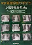明解 画像診断の手引き 小児呼吸器領域編