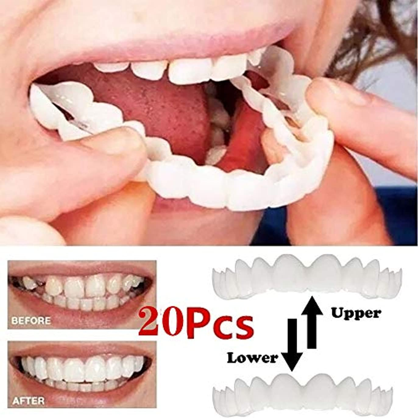 爆発物家禽バルーン突き板の歯、化粧品の歯 - 一時的な笑顔の快適さフィットフレックス化粧品の歯、偽歯、快適な上と下のベニヤ - 歯のベニヤ(10 /下+ / 10トップ)