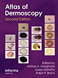 An Atlas of Dermoscopy, Second Edition