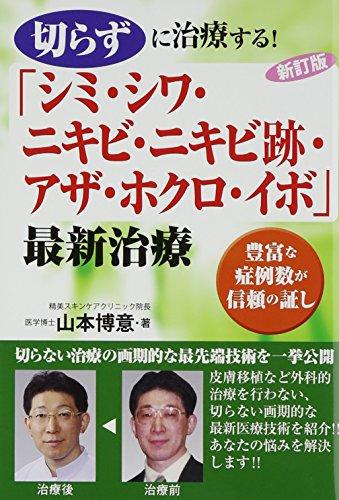 切らずに治療する!「シミ・シワ・ニキビ・ニキビ跡・アザ・ホクロ・イボ」最新治療―...