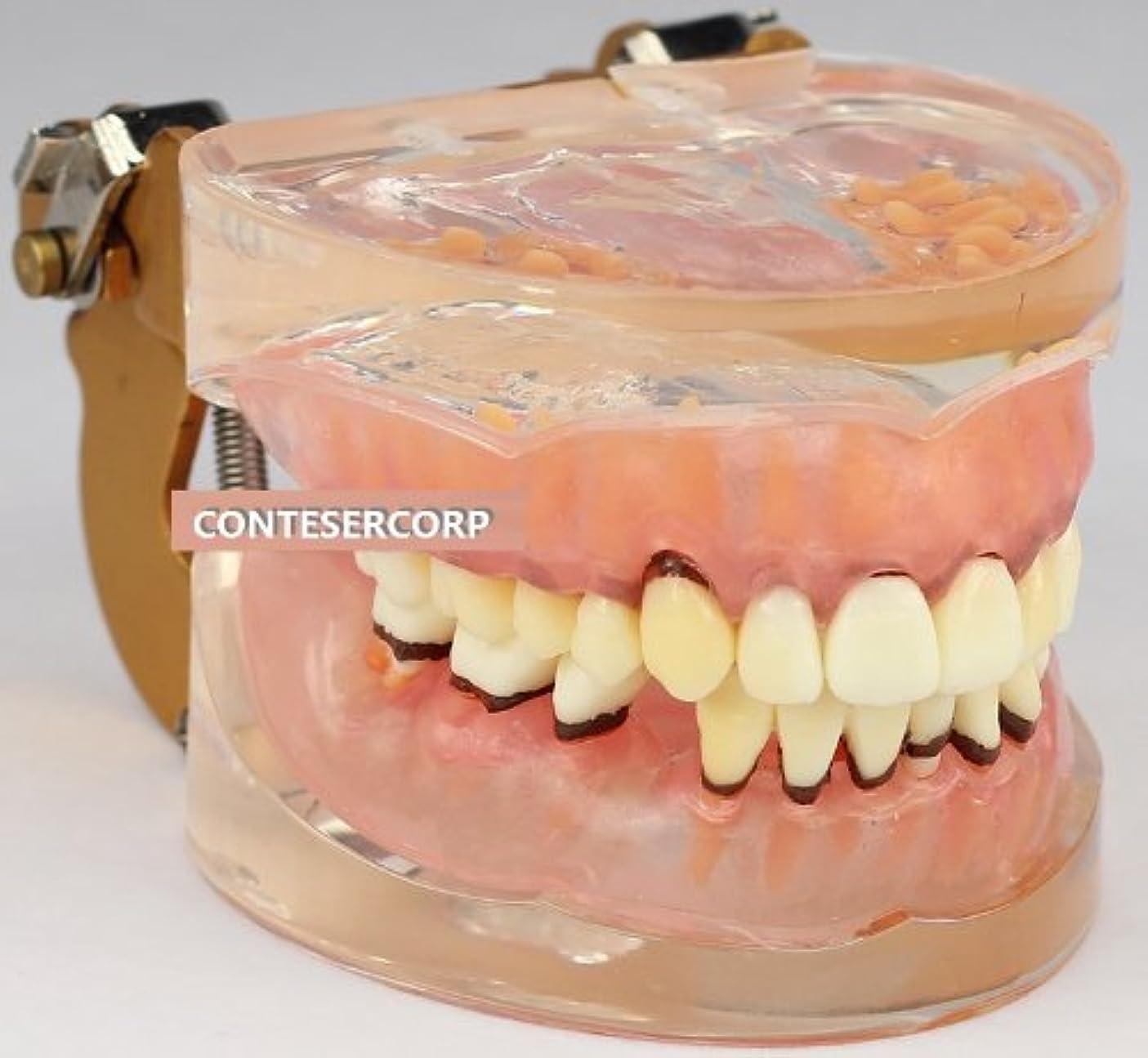 悪い気味の悪い学士歯列模型 歯周病 歯槽膿漏 歯周疾患 ペリオ 47