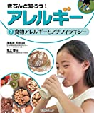 食物アレルギーとアナフィラキシー (きちんと知ろう!  アレルギー)