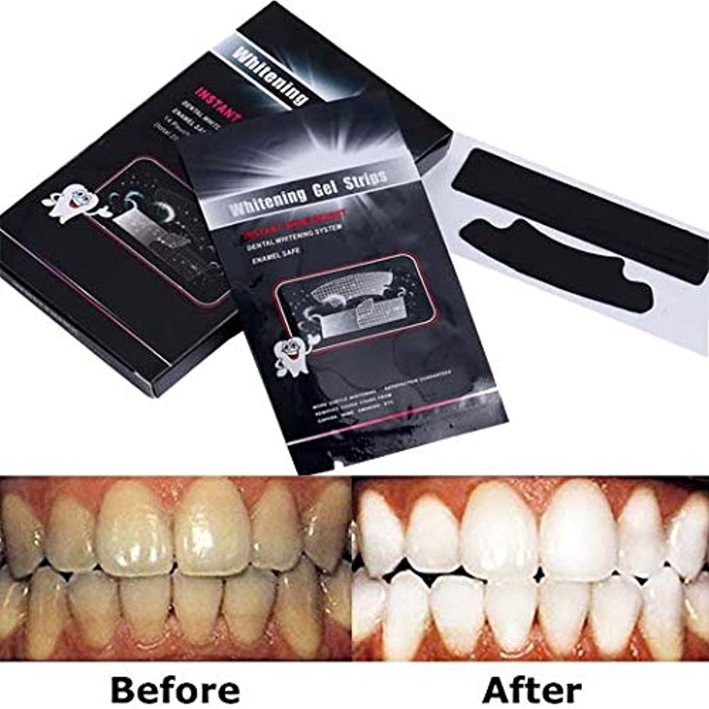 織機透過性死傷者14セット 28枚入り 活性竹炭歯を白くする、歯を白くするストリップ、ストリップをホワイトニングするプロの歯 - ホワイトパックであなたの歯を白くする28-パック - 歯からコーヒー、紅茶、およびタバコの汚れを取り除きます...