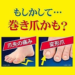 【一般医療機器】ドクターショール 巻き爪用クリップ Sサイズ1個入