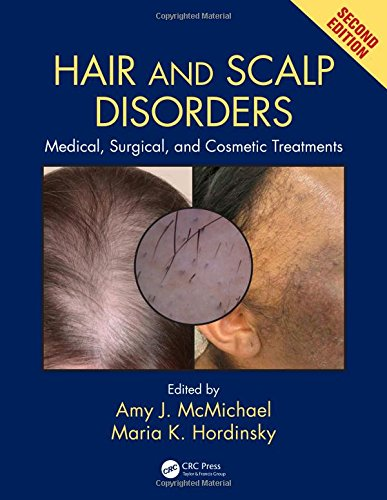 Hair and Scalp Disorders: Medical, Surgical, and C...