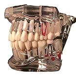 歯科模型 歯列模型 透明 インプラント 着脱できる 歯磨き 指導 歯根 見える 治療 説明 歯科医 研究 学習 教材 (クリア)
