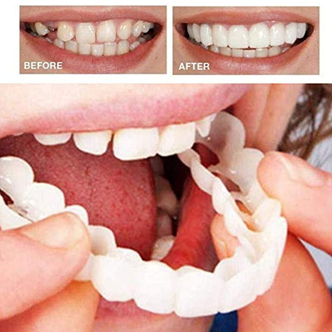 勇者経験周波数6本の偽の歯の上、美しいインスタント歯科用化粧板の笑顔の快適なフィットフレックス化粧品の歯義歯の歯のトップ化粧品のベニヤ、ワンサイズフィット矯正