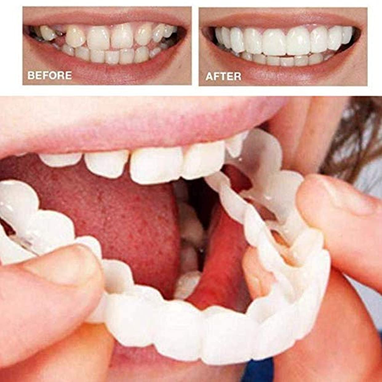 口ひげ上陸降下6本の偽の歯の上、美しいインスタント歯科用化粧板の笑顔の快適なフィットフレックス化粧品の歯義歯の歯のトップ化粧品のベニヤ、ワンサイズフィット矯正