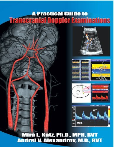 Download Practical Guide to Transcranial Doppler Examinations 0972065318