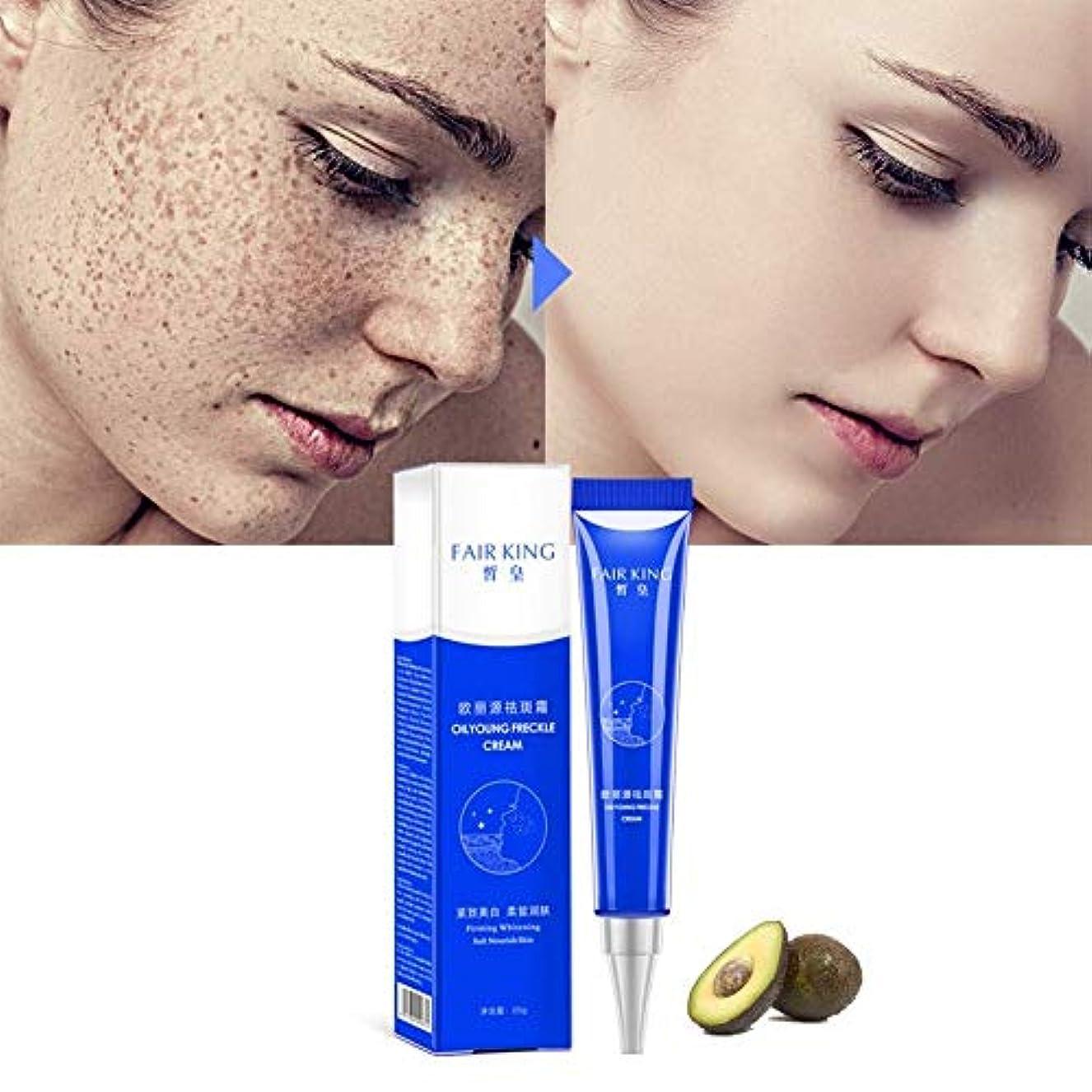 盗難一回マザーランド効果的な美白そばかすクリーム保湿は、黒ずみのにきび治療顔料メラニン美白スキンケアを削除します