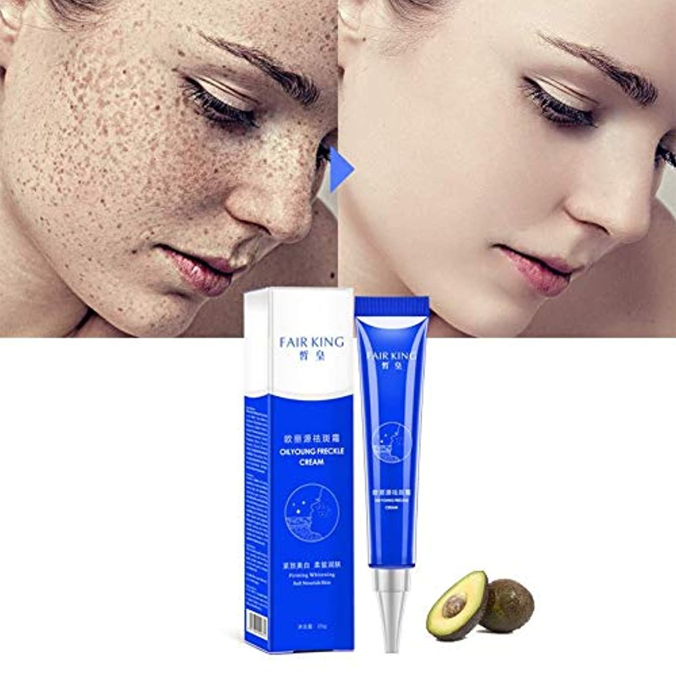 流行しているリサイクルする伝説効果的な美白そばかすクリーム保湿は、黒ずみのにきび治療顔料メラニン美白スキンケアを削除します