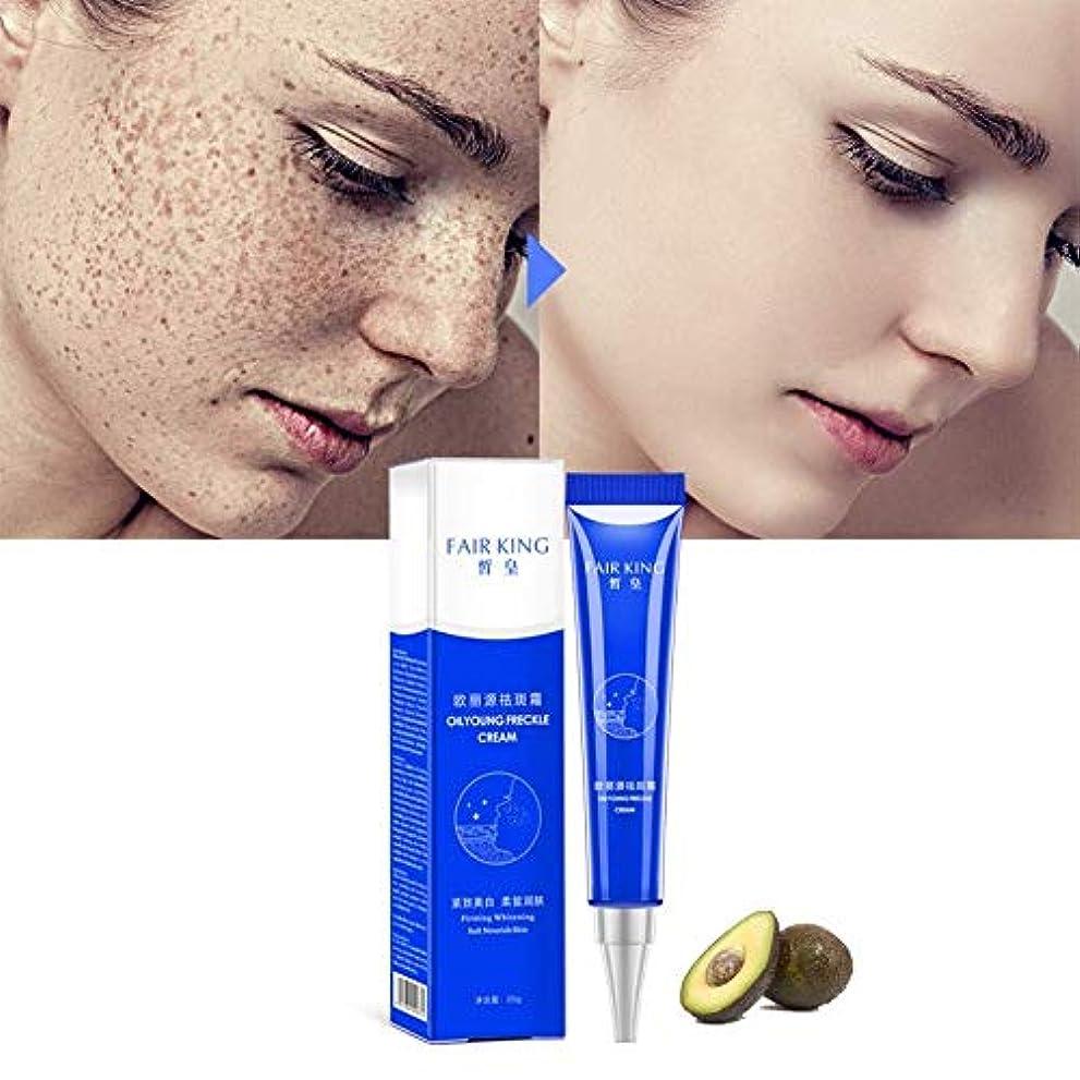 地理許可挽く効果的な美白そばかすクリーム保湿は、黒ずみのにきび治療顔料メラニン美白スキンケアを削除します