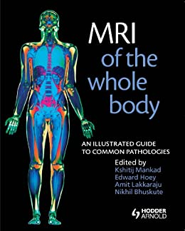 amazon co jp mri of the whole body an illustrated guide for common