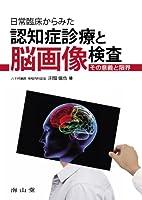 日常臨床からみた認知症診療と脳画像検査-その意義と限界