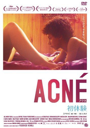 アクネ 初体験 [DVD]の詳細を見る