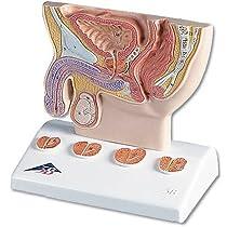 3B社 前立腺模型 前立腺1/2倍大モデルリアルカラー型 (k41)