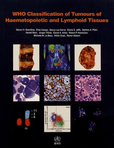 WHO Classification of Tumours of Haematopoietic and Lymphoid Tissues (World Health Organization Classification of Tumours)
