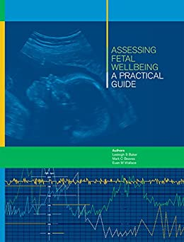 Assessing Fetal Wellbeing: A Practical Guide by [S Baker, Lesleigh, C Beaves, Mark, M Wallace AM, Euan]