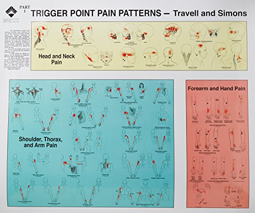 Download Trigger Point Pain Patterns Wall Charts 0683083686