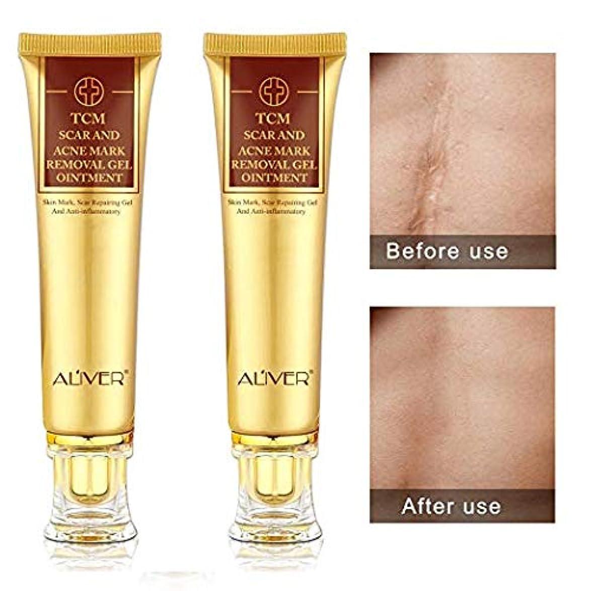 原子有効悪用(2本)TCM漢方医 ケロイド除去クリーム 消炎クリーム にきびの傷跡治療クリーム ニキビのシミを修復して、お肌を美白します