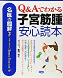 名医の図解 Q&Aでわかる子宮筋腫安心読本 (名医の図解-Home Doctor-)
