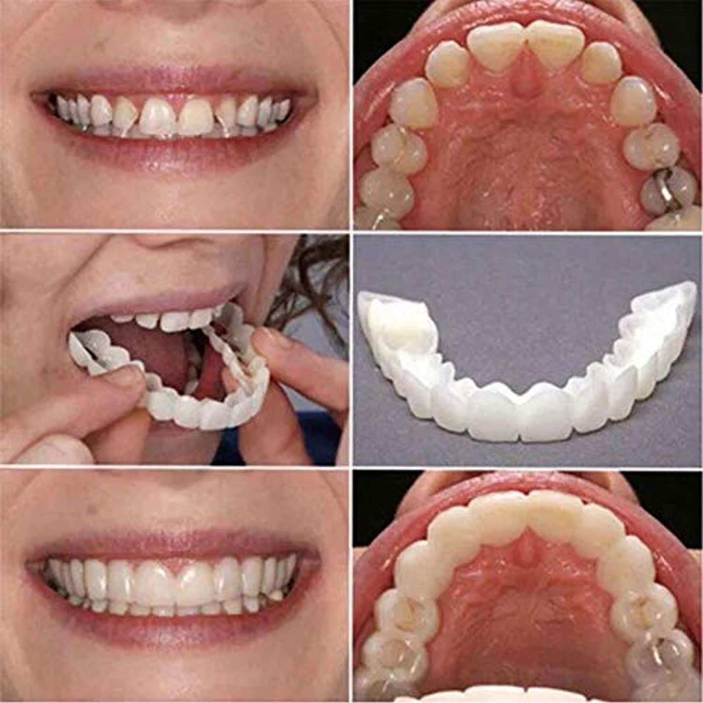 対処ハンディキャップ相続人2個の歯ピースフィッティング快適なフィット歯のソケット義歯口腔用品矯正アクセティース 笑顔を保つ