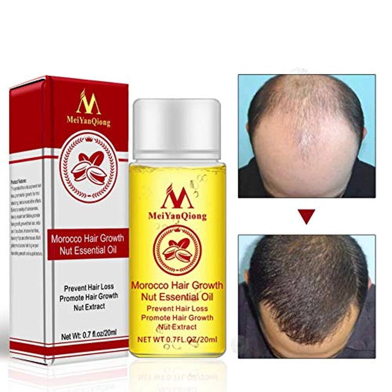 誇大妄想開発偶然のAlluoleのモロッコの毛の成長のナットの精油の反毛の損失は毛の成長の本質を促進します