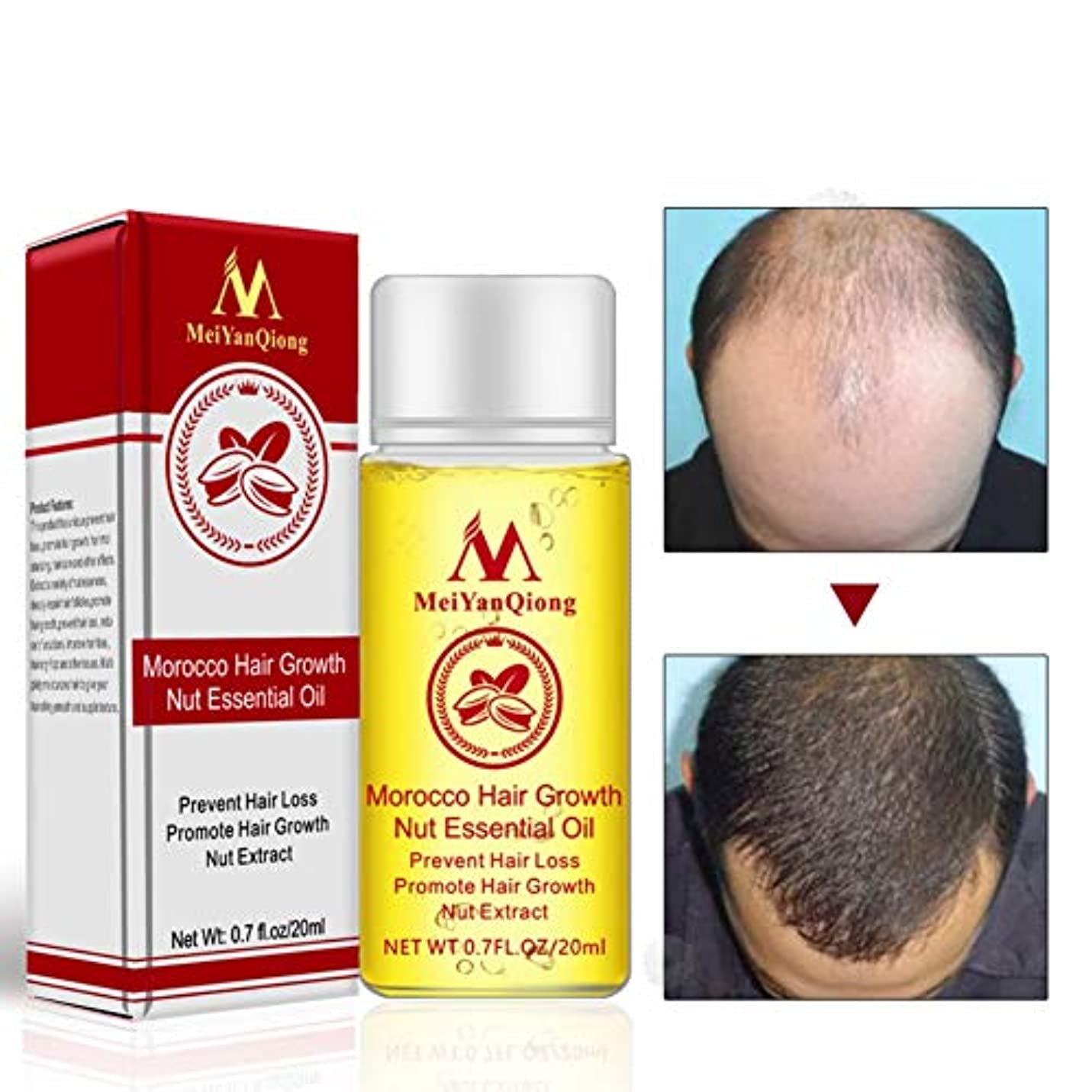 裏切り修理工混合したAlluoleのモロッコの毛の成長のナットの精油の反毛の損失は毛の成長の本質を促進します