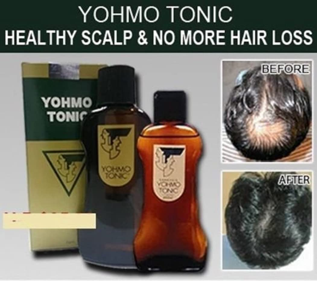 金銭的ファンシー医学YOHMO 強壮剤200ml 使用する育毛剤外部日本脱毛強壮剤