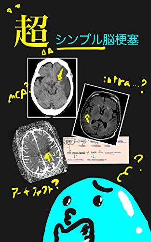 超シンプル脳梗塞 MRIを読み始めようとする前に読む本。 (名無しの権三郎文庫)
