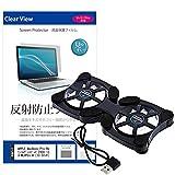 メディアカバーマーケット APPLE MacBook Pro Retinaディスプレイ 2900/13.3 MLVP2J/A [13.3インチ(2560x1600)]機種用 【ポータブルPC..