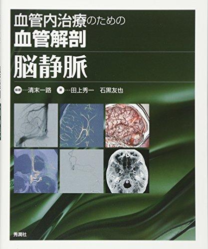 血管内治療のための血管解剖 脳静脈の詳細を見る