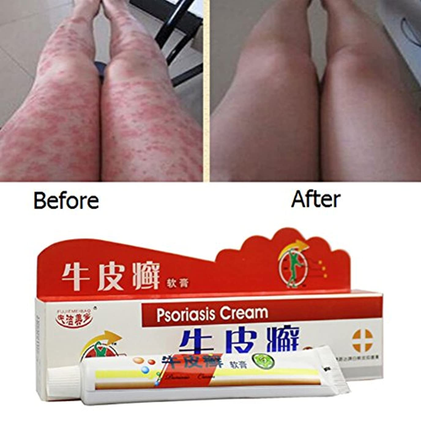 共和国と遊ぶ下線Balai 乾癬クリーム 中国のハーブ抗菌軟膏クリーム 湿疹乾癬 治療かゆみ止めクリーム