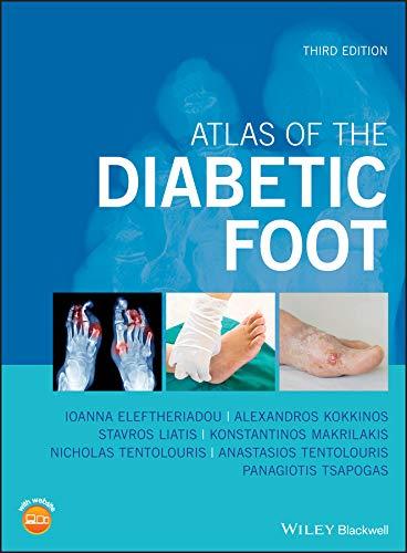 Atlas of the Diabetic Foot (En...