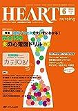 ハートナーシング 2016年6月号(第29巻6号)特集:読解プロセスですいすいわかる!  完全攻略 炎の心電図ドリル50