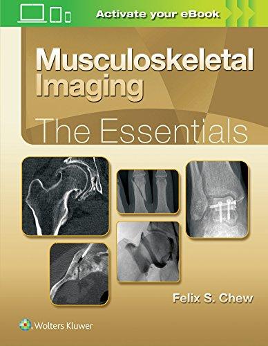 Download Musculoskeletal Imaging: The Essentials 1496383834