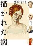 描かれた病:疾病および芸術としての医学挿画
