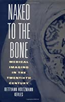 Naked to the Bone: Medical Imaging in the Twentieth Century (Sloan Technology Series)