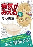 病気がみえる vol.8: 腎・泌尿器 画像