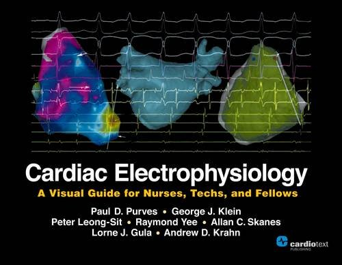 Download Cardiac Electrophysiology: A Visual Guide for Nurses, Techs, and Fellows 1935395513