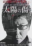 太陽の傷 [DVD]