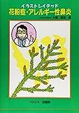 イラストレイテッド 花粉症・アレルギー性鼻炎