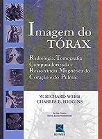 Imagem do Tórax. Radiologia, TC e RM do Coração e do Pulmão (Em Portuguese do Brasil)
