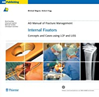 Internal Fixators: Concepts and Cases Using Lcp and Liss (Ao Manual of Fracture Management Series)