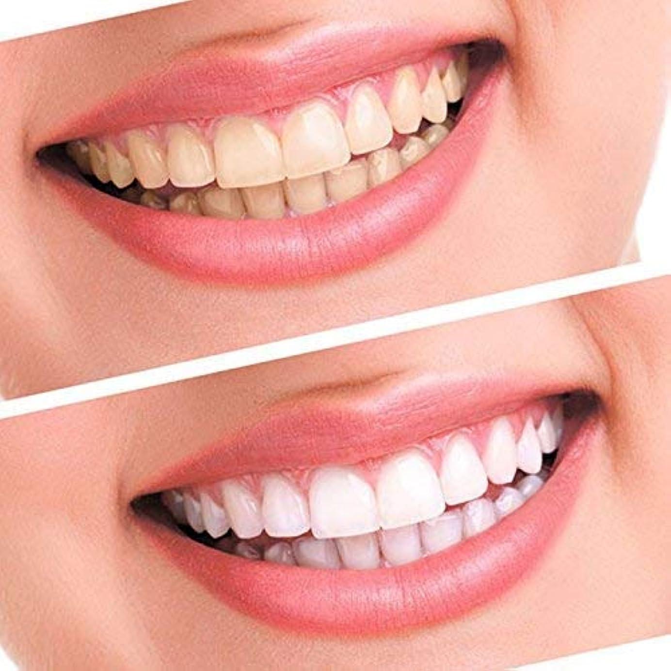 ベスビオ山補充統合ゲルホワイトニング歯10シリンジ