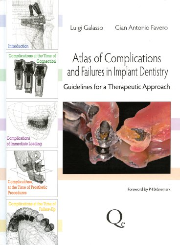 Download Atlas of Complications and Failures in Implant Dentistry: Guidelines for a Therapeutic Approach 8874921829