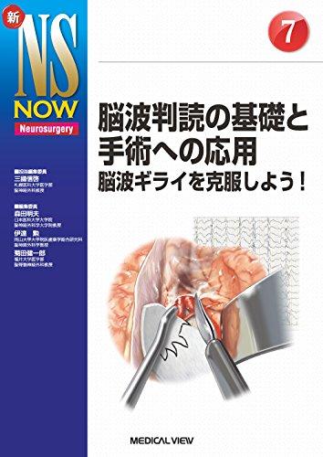 脳波判読の基礎と手術への応用−脳波ギライを克服しよう! (新NS NOW 7)